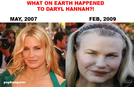 Some women choose to try plastic surgery - only to have it backfire on them like Daryl Hannah.